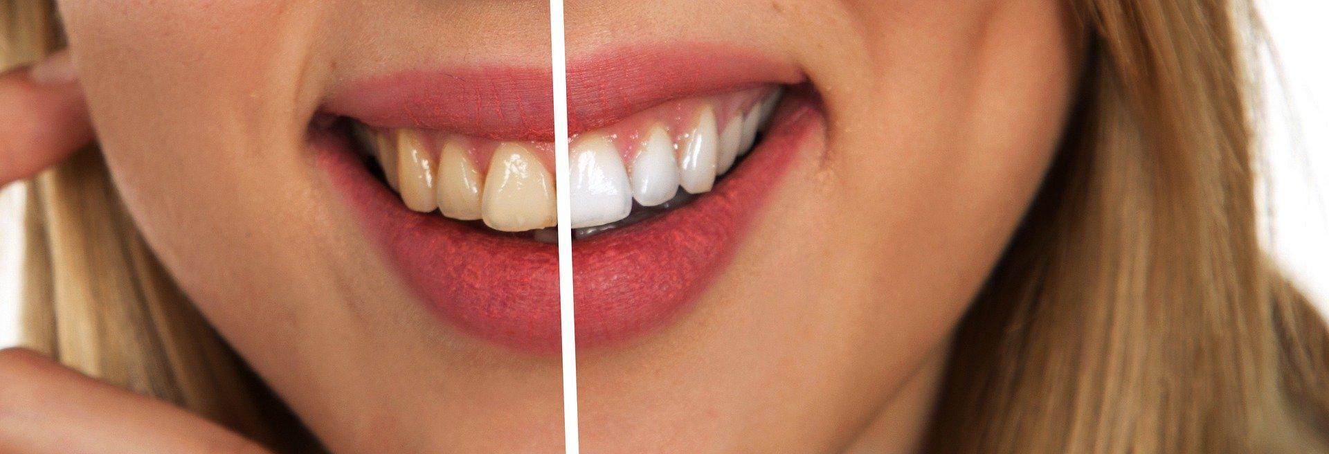 Wybielanie zębów - efekty